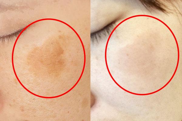 どんなガンコなお肌のシミでもたった1ヶ月で徹底漂白!?